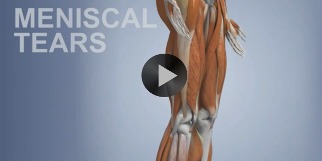 Common Sports Injuries: Meniscal Tears