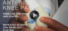 Common Sports Injuries: Anterior Knee Pain