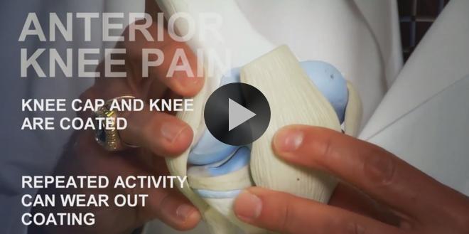 Common Sports Injuries: Anterior Knee Pain