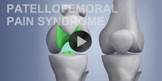 Common Sports Injuries: Patellofemoral Pain